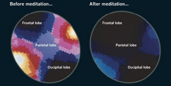 How to make meditation work for you